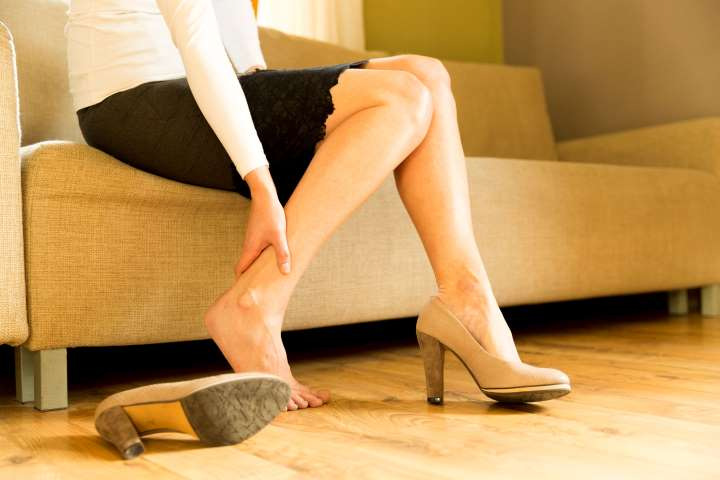 woman with varicose veins